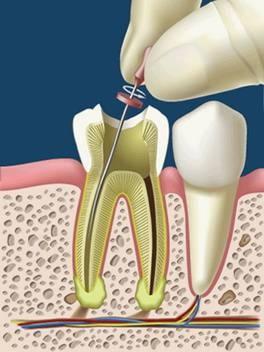vista en sección de endodoncia