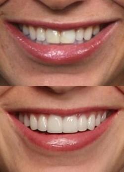 dientes antes y despues de realizar estética