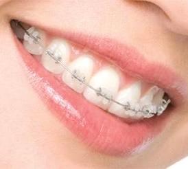 braquets instalados en dientes