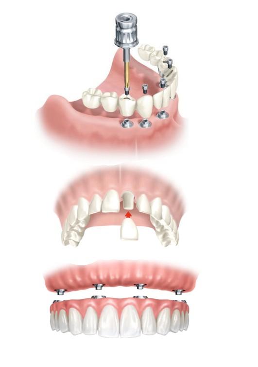 proceso de implantación de prótesis dental