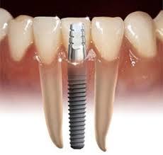 sección de un implante